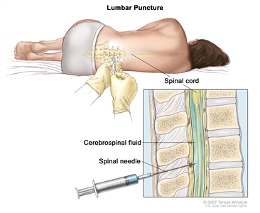 Lumbar puncture; drawing shows a patient lying in a curled position on a table and a spinal needle (a long, thin needle) being inserted into the lower back. Inset shows a close-up of the spinal needle inserted into the cerebrospinal fluid (CSF) in the lower part of the spinal column.