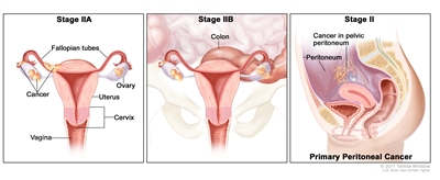 Three-panel drawing of stage IIA, IIB, and stage II primary peritoneal cancer; the first panel (stage IIA) shows cancer inside both ovaries that has spread to the uterus and fallopian tube. The second panel (stage IIB) shows cancer inside both ovaries that has spread to the colon. The third panel (stage II primary peritoneal cancer) shows cancer in the pelvic peritoneum. Also shown are the cervix and vagina.